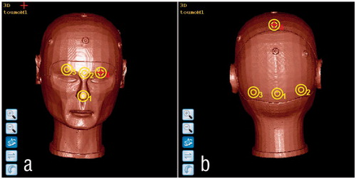 Accuracy Analysis of Line-Based Registration for Image Guided Neurosurgery at Different Operating…