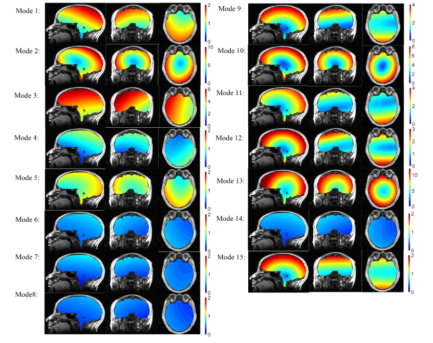 Regional-surface-based registration for image-guided neurosurgery: Effects of scan modes on...