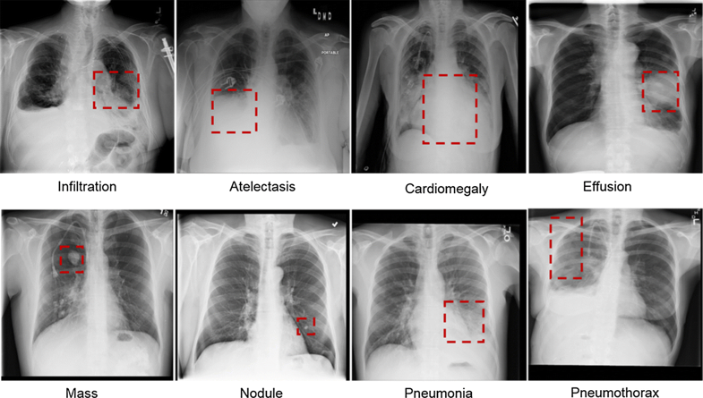 Computer-aided detection in chest radiography based on artificial intelligence: a survey